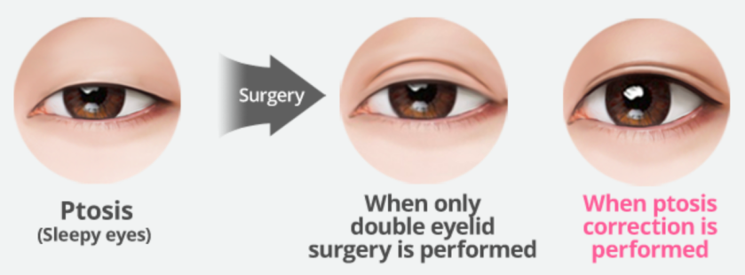 With or without Ptosis Correction