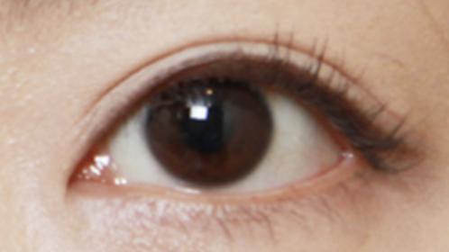 Outfold Eyelid
